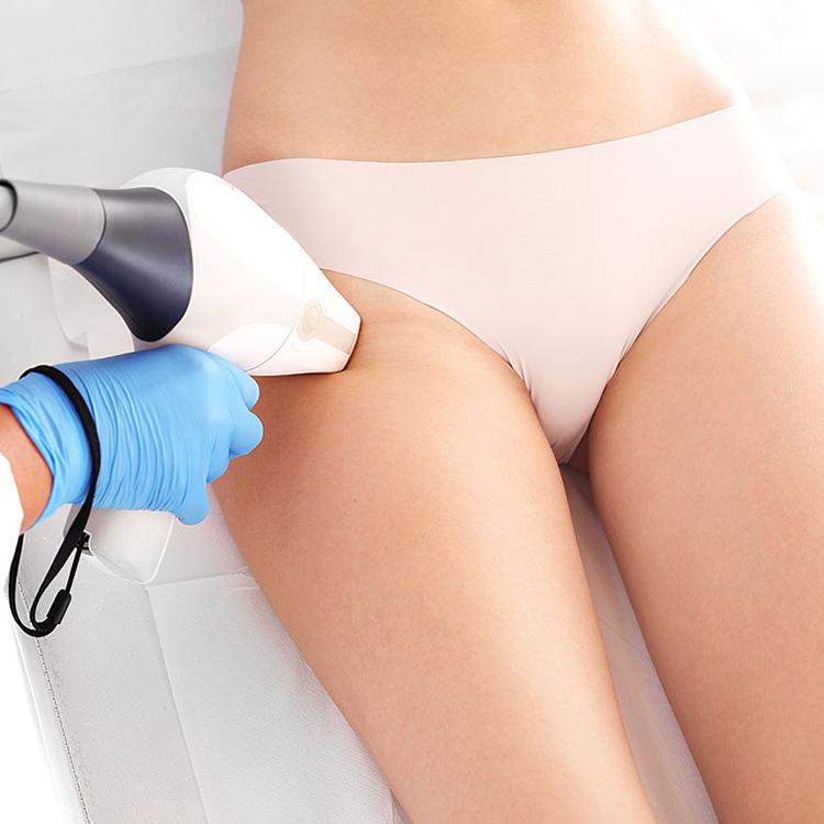 Depilacja laserowa bikini